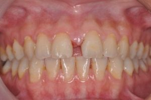 WE SPECIALIZE IN SMILE MAKEOVER - Before