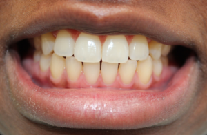 WE SPECIALIZE IN SMILE MAKEOVER